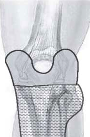 Férula tibial y pernea